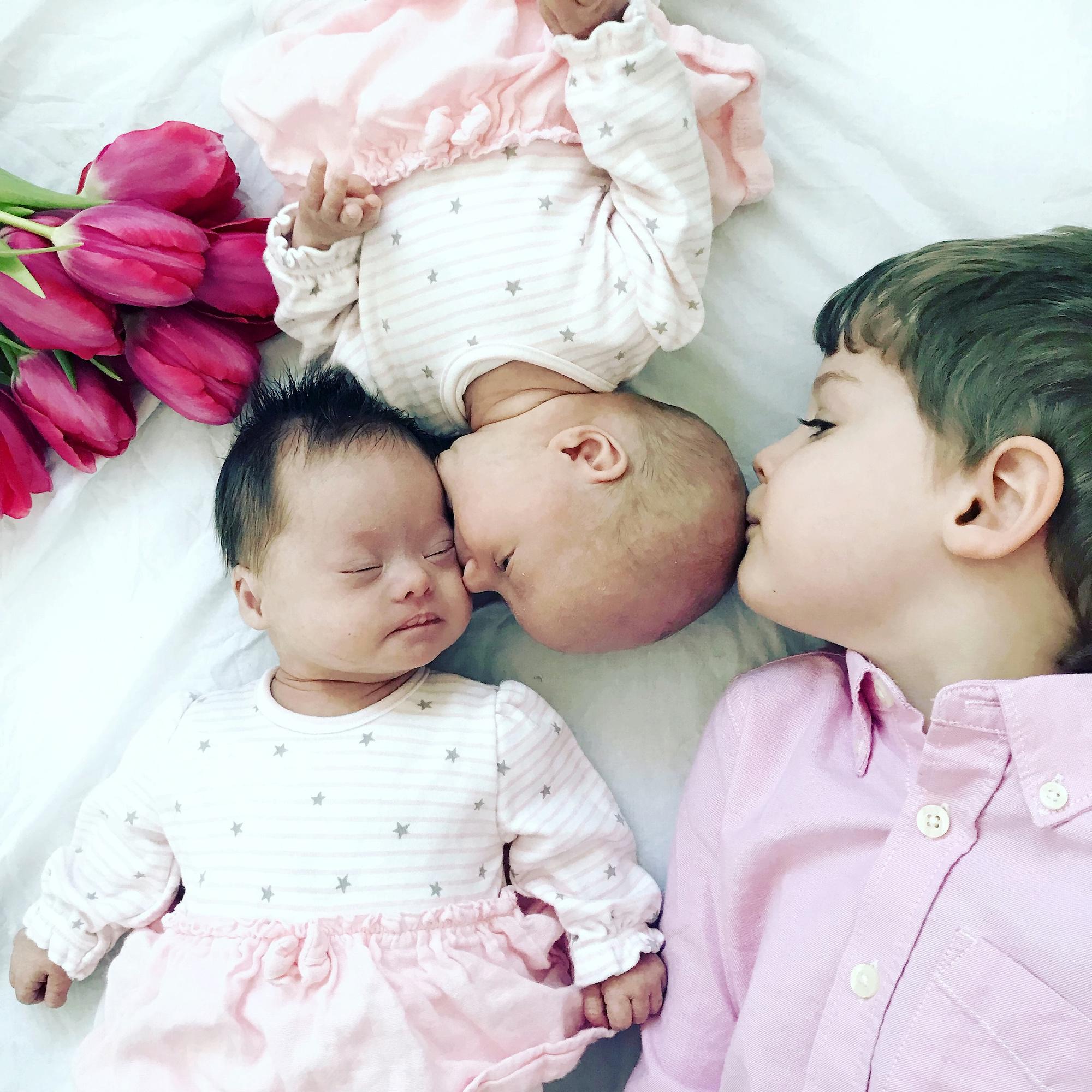 Mια στο εκατομμύριο: Γεννήθηκαν δίδυμα, το ένα με σύνδρομο down και το άλλο χωρίς - Εικόνα 3