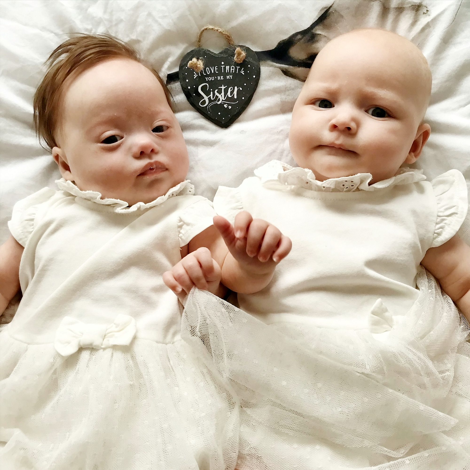 Mια στο εκατομμύριο: Γεννήθηκαν δίδυμα, το ένα με σύνδρομο down και το άλλο χωρίς - Εικόνα 4
